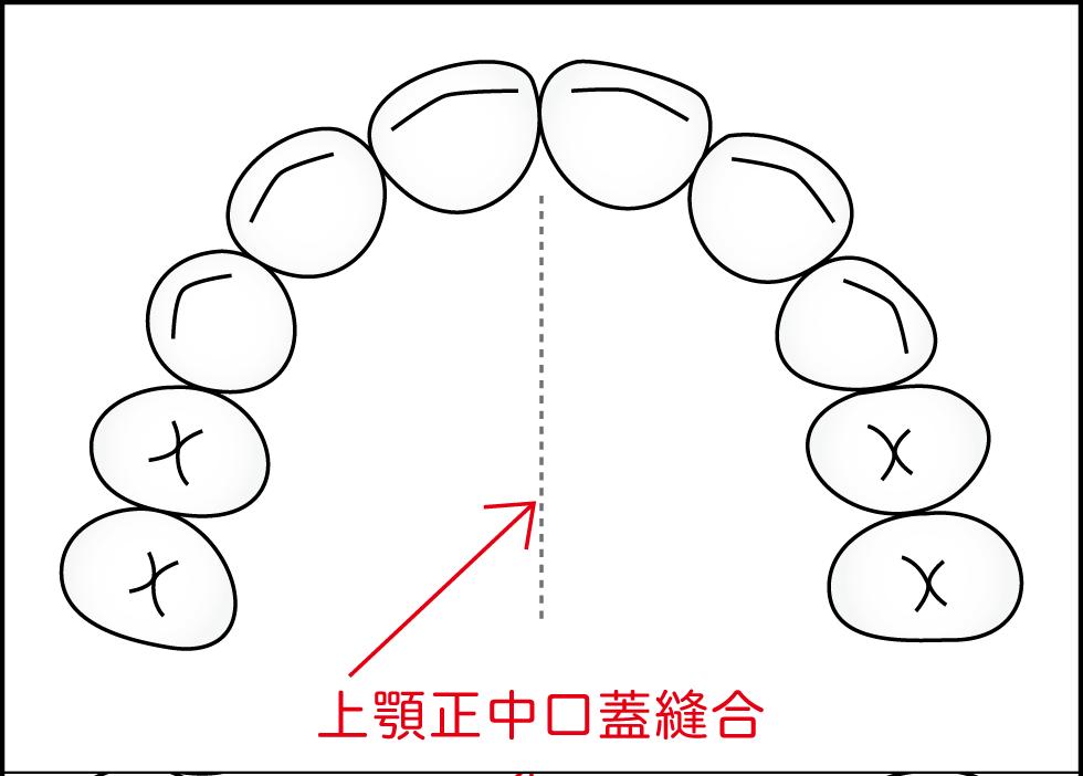 上顎正中口蓋縫合図